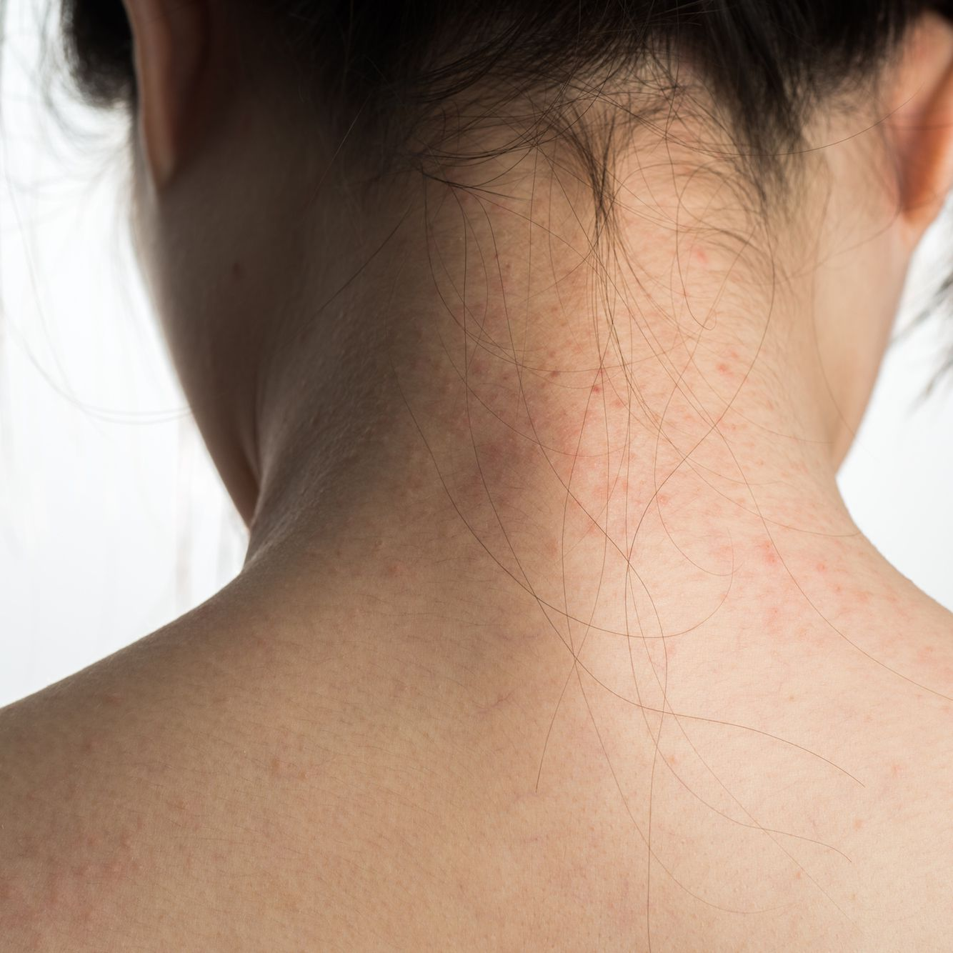 The Differences Between Atopic and Contact Dermatitis