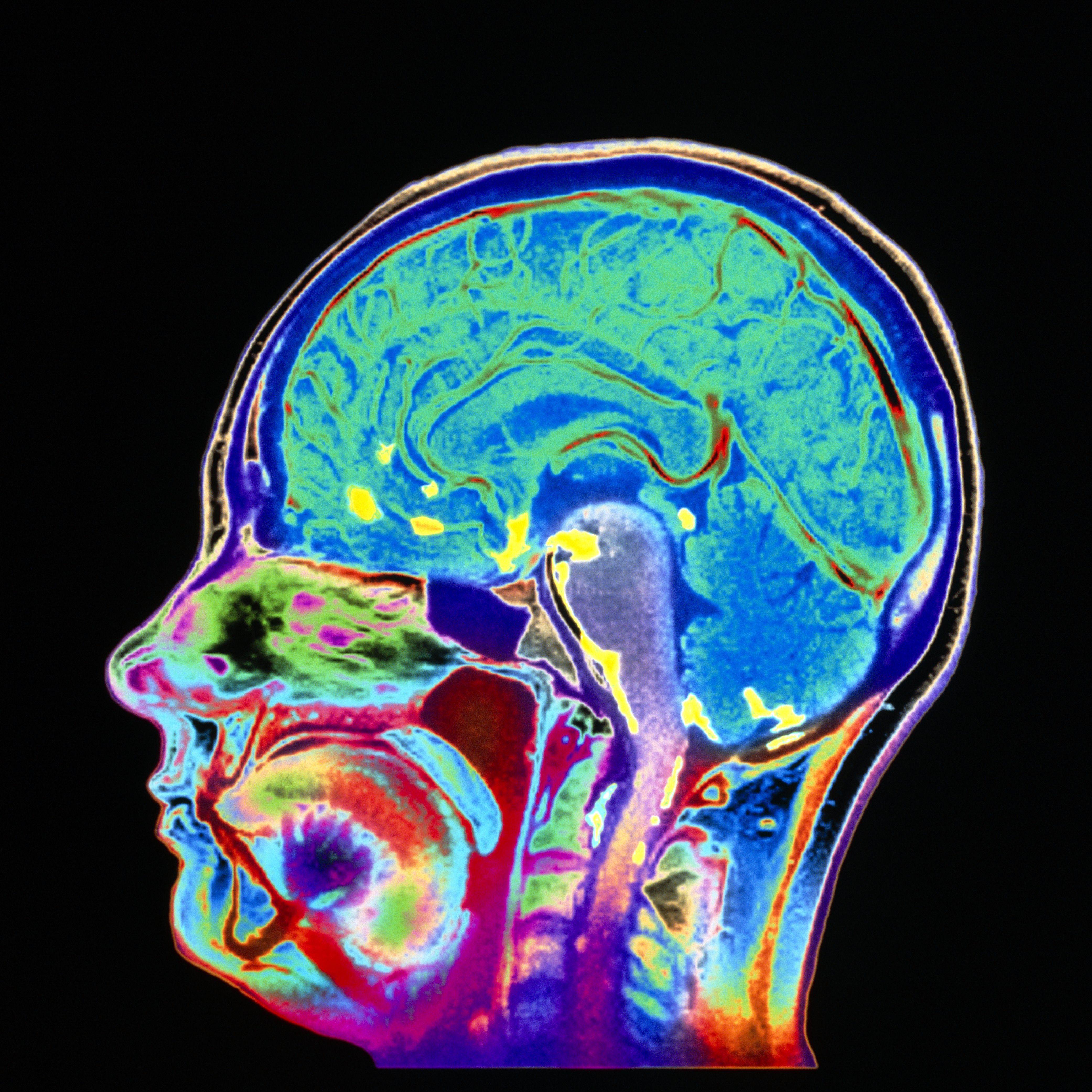 Brain Imaging Studies Seek Signs Of >> How Meningitis Is Diagnosed