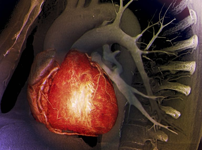 Healthy heart. Coloured 3D model based on 2D computed tomography (CT) scans of a 68-year-old's chest, showing the healthy heart (lower left), coronary arteries (lines on heart), and aortic arch (curve, upper centre).