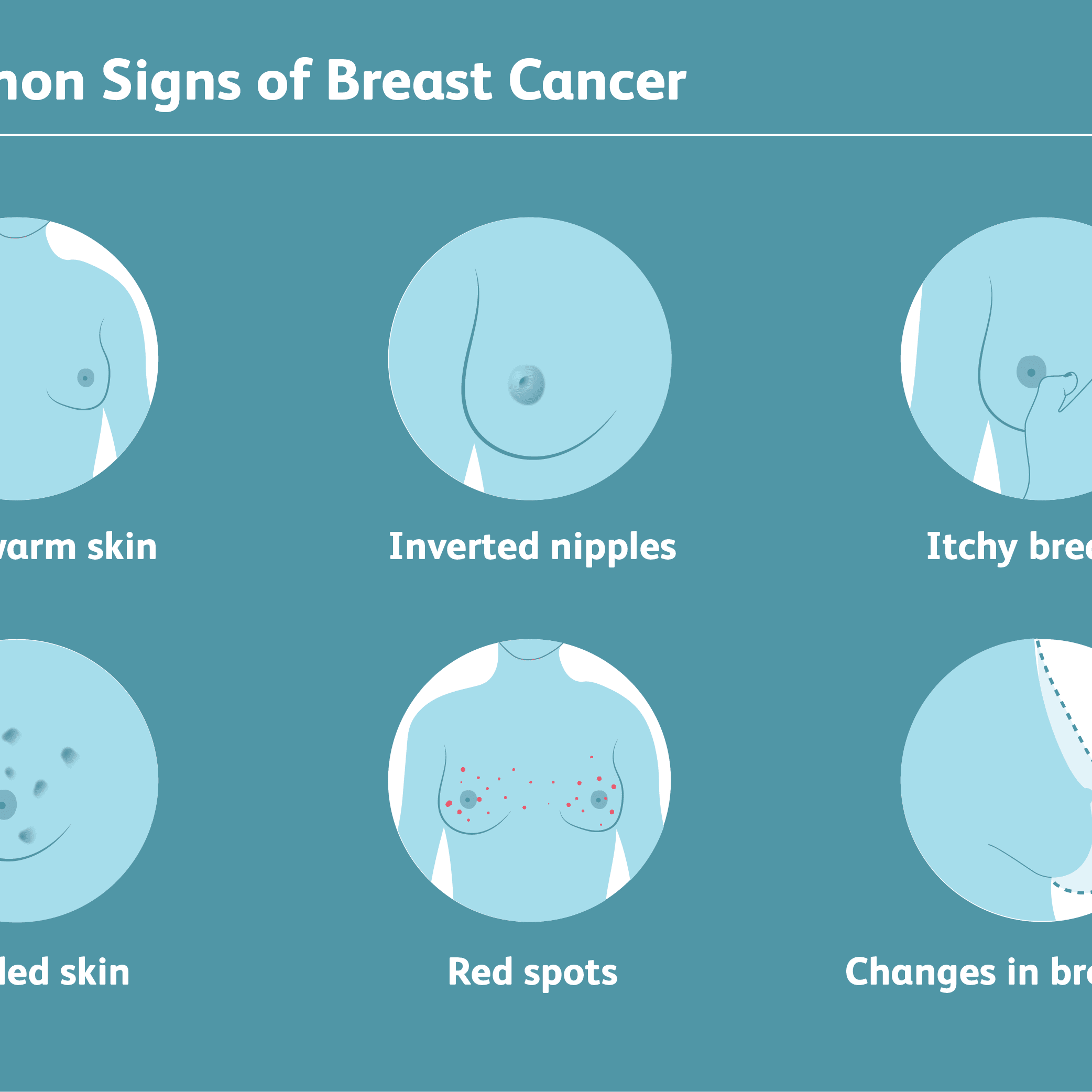 Rare Signs Of Breast Cancer