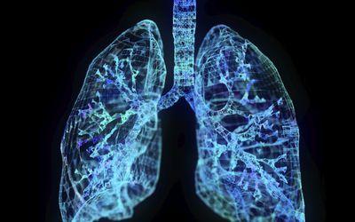 Illustration of a plexus lung