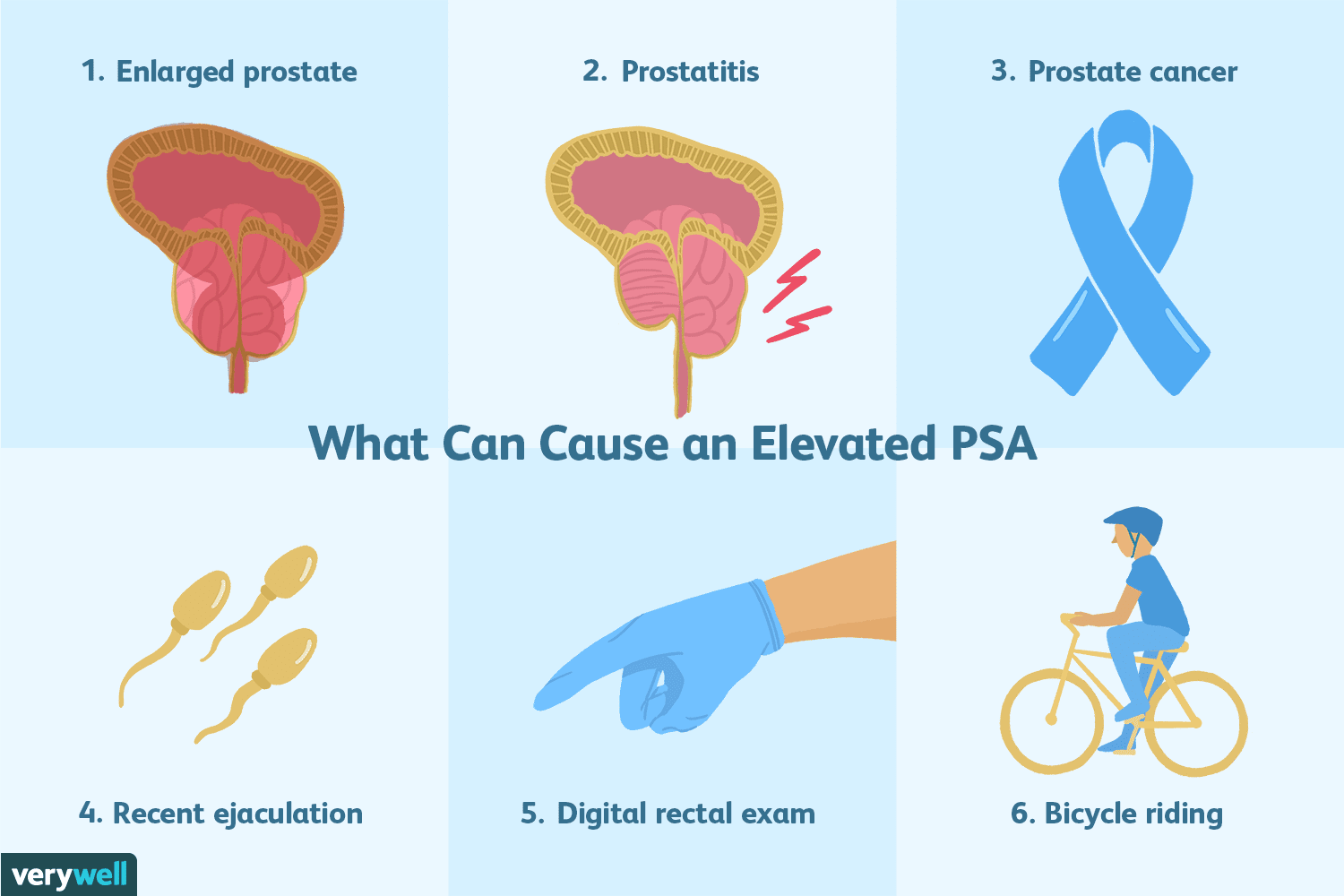 overview of the prostate-specific antigen (psa) test