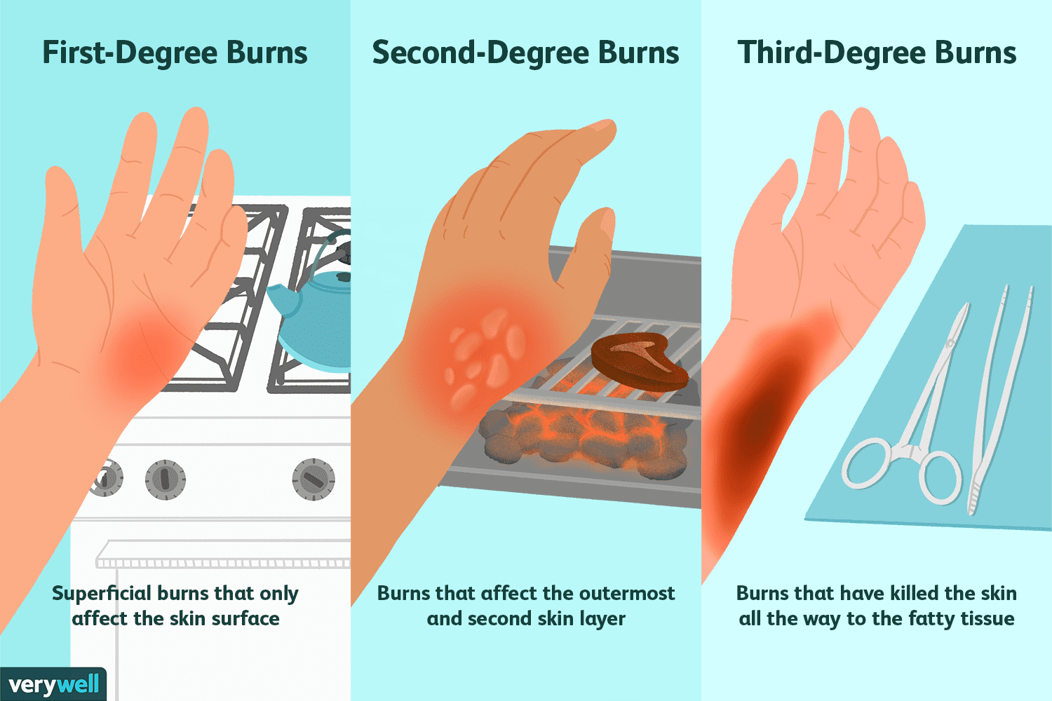 How Different Degrees of Burns Are Treated
