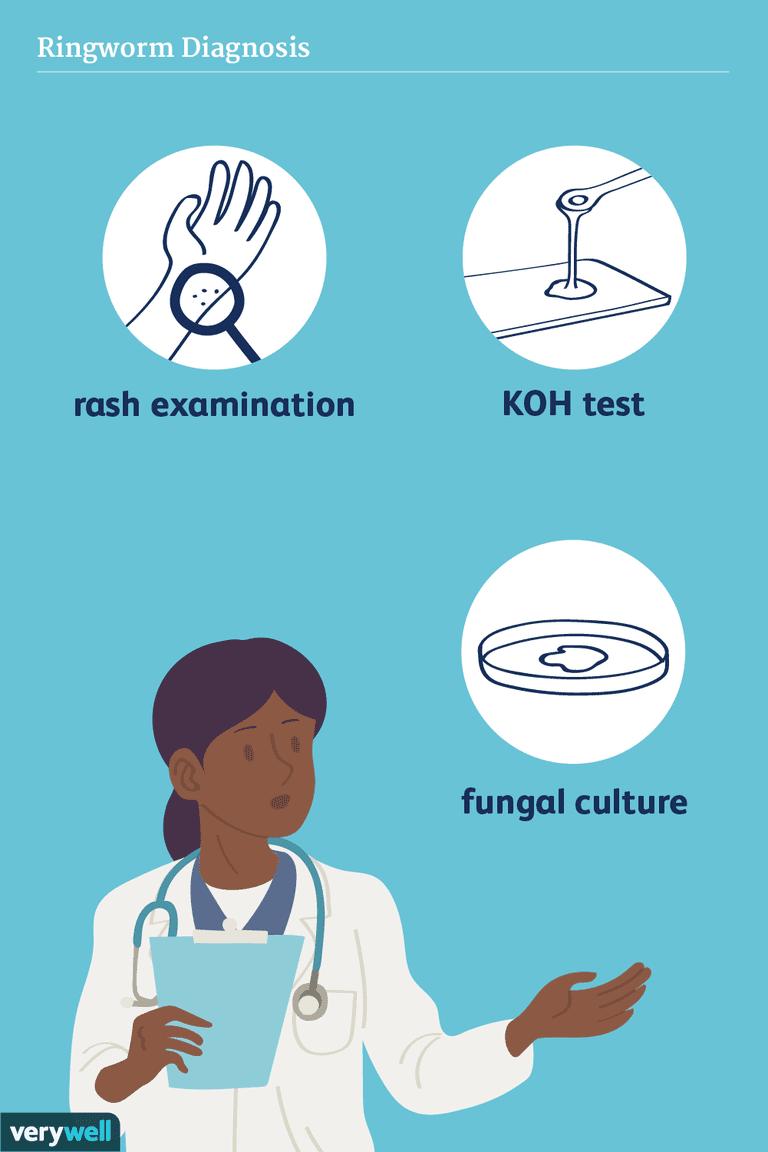 ringworm diagnosis