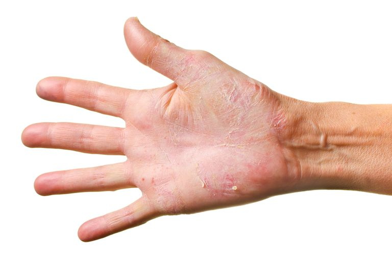 A hand with dermatitis herpetiformis