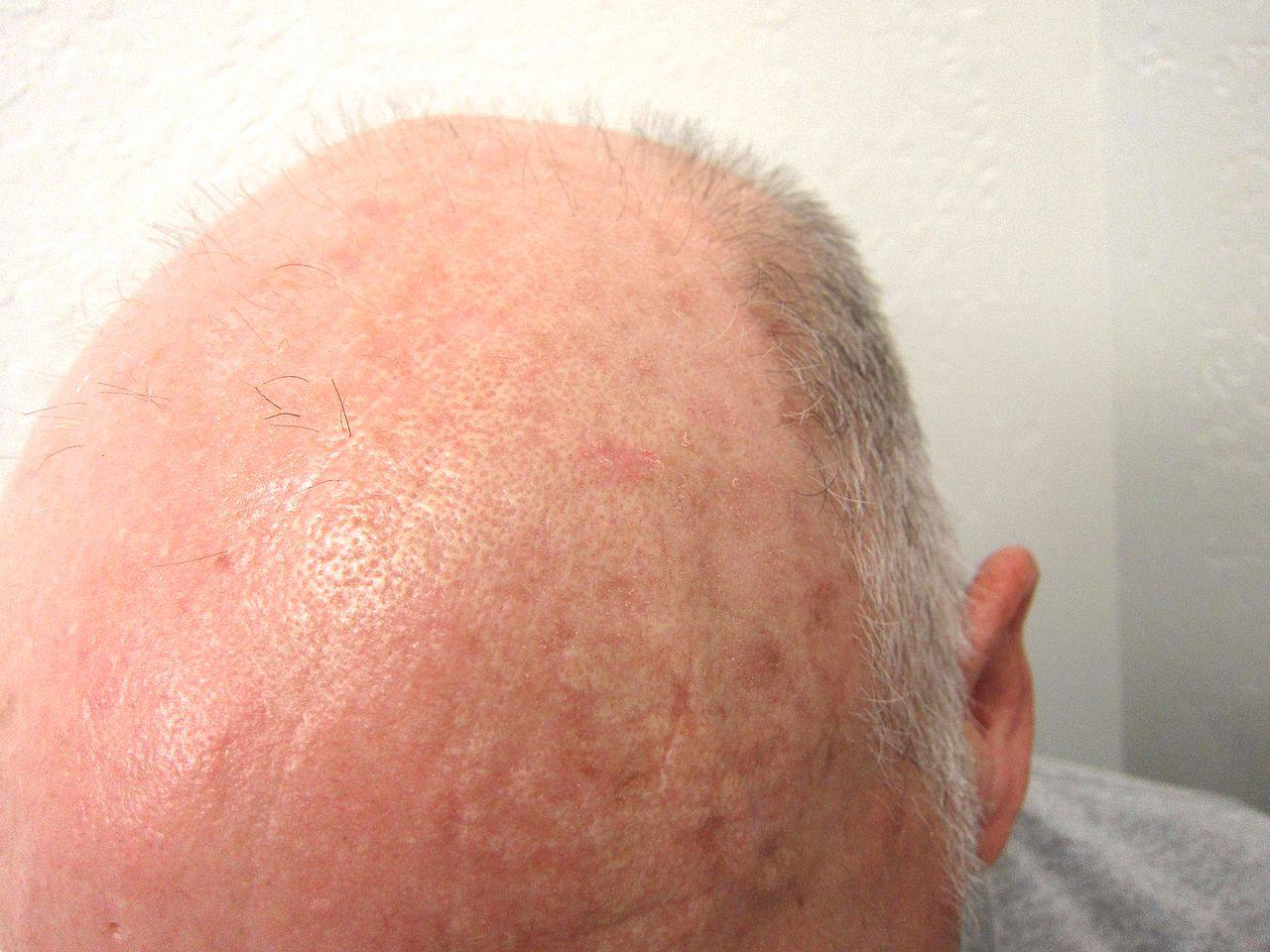 Actinic keratoses are precancerous lesions common on sun-exposed areas of the skin. They can assume many different appearances, but this image shows a very common presentation of AKs on a balding head.