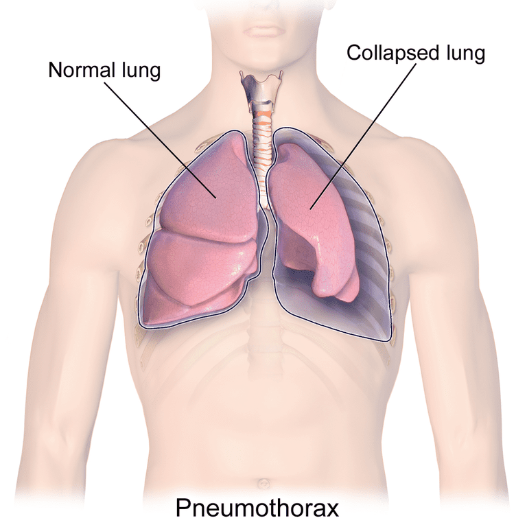 Pneumothorax illustration for which bullectomy is a treatment