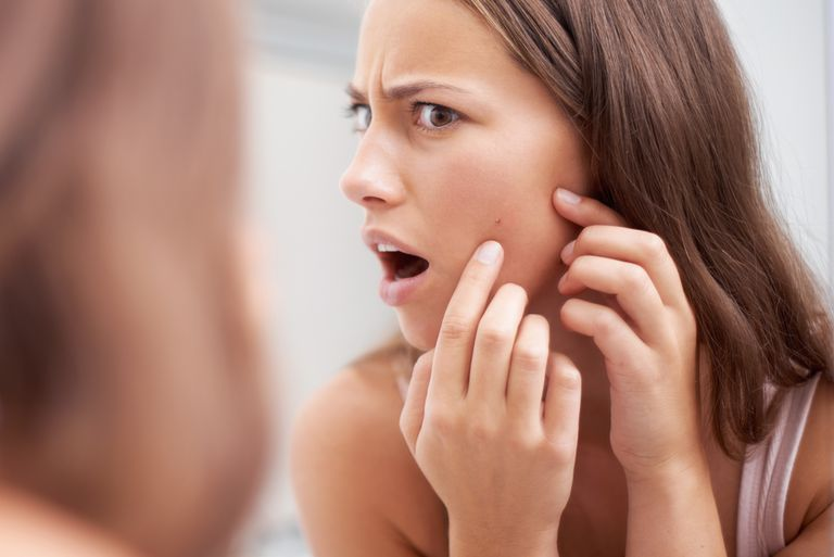 immediate treatment for pimples