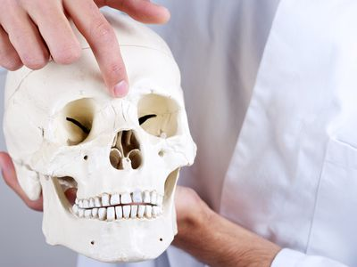 Skull with nasal bone with fracture