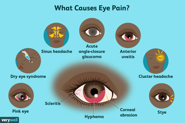 20b118cd03a Eye Pain  Causes