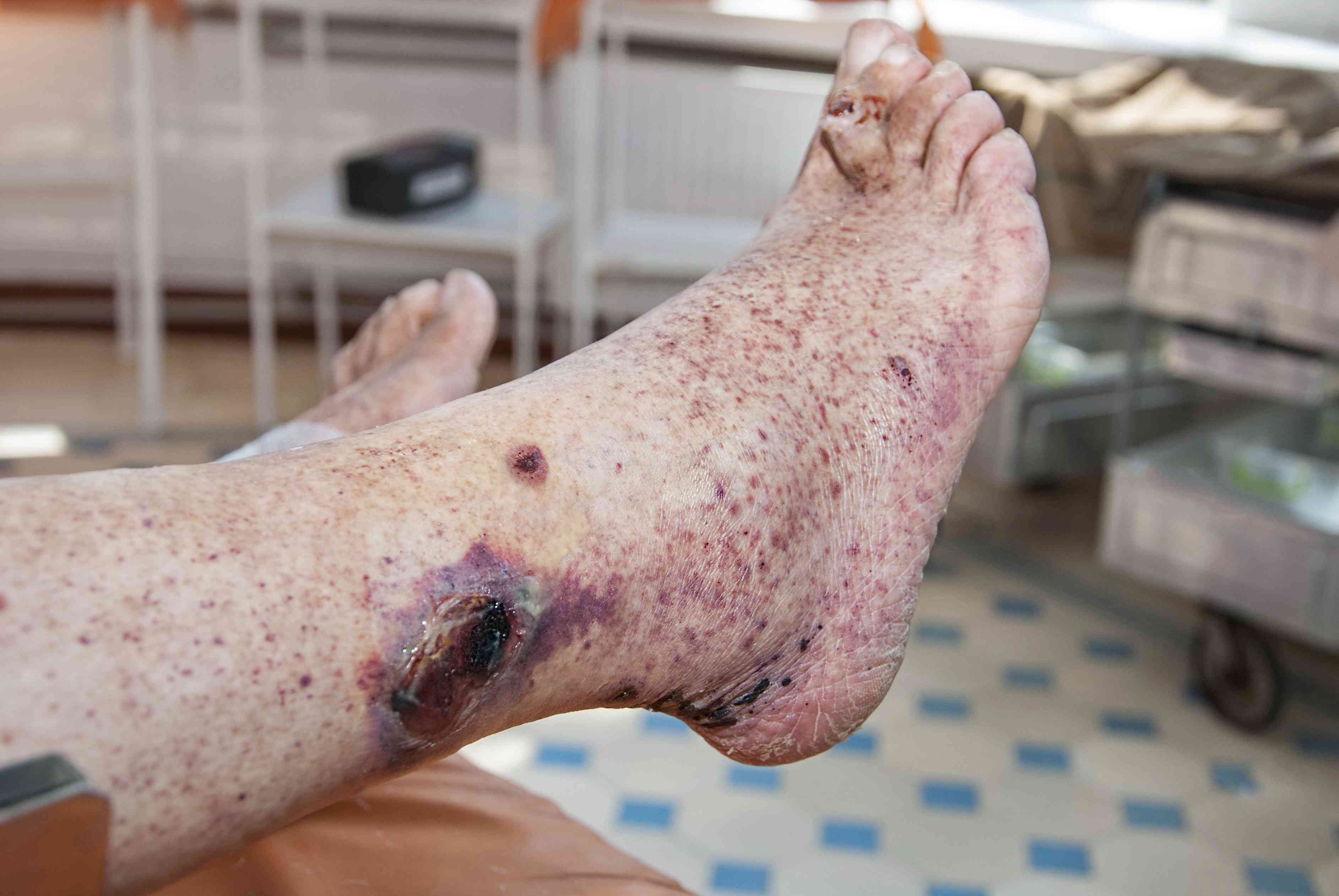 blood spots on the ankle and foot