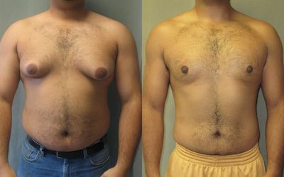 Causes Of Male Breast Pain And Swelling