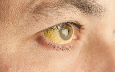 Close up of jaundiced eyes.
