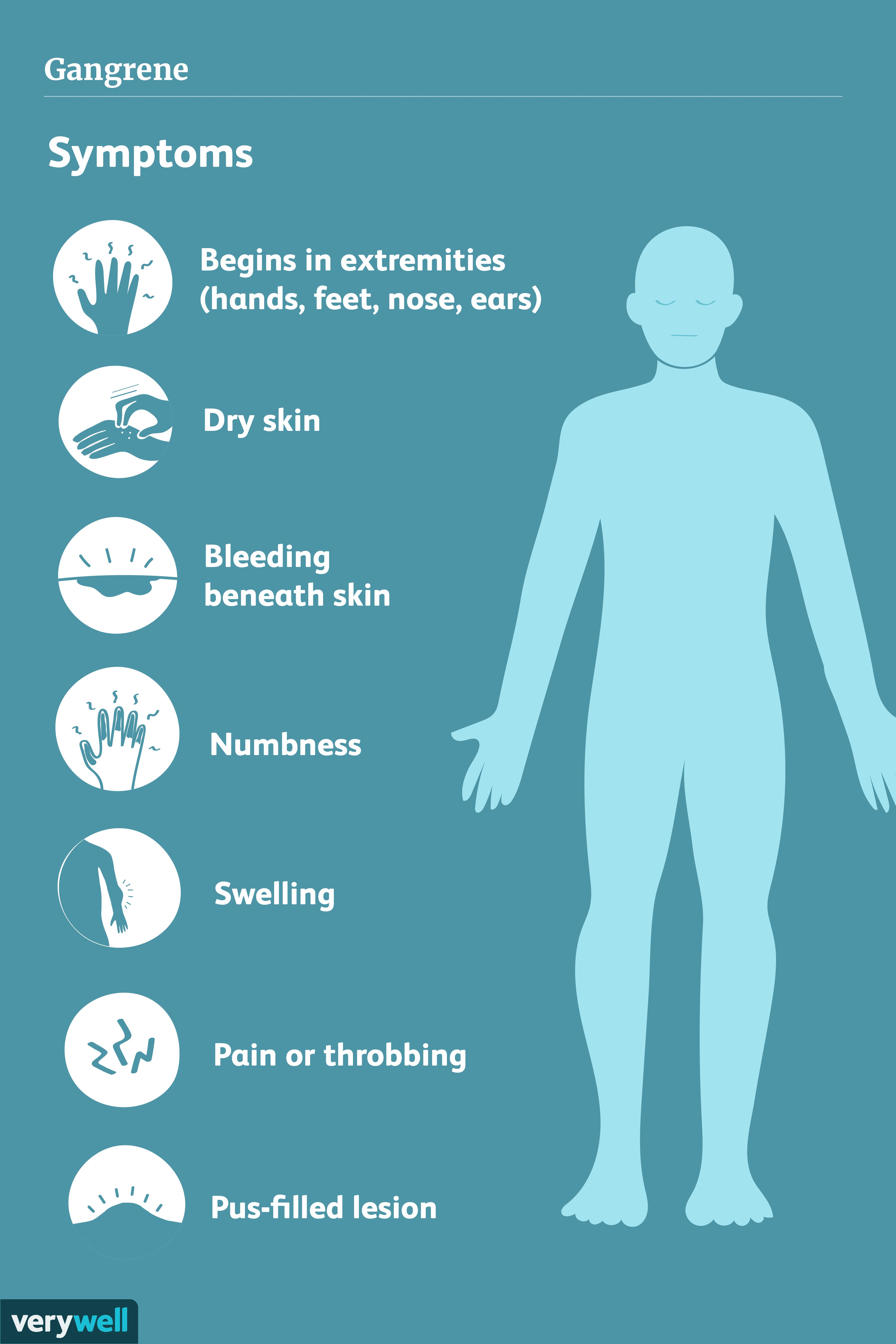 Symptoms of gangrene