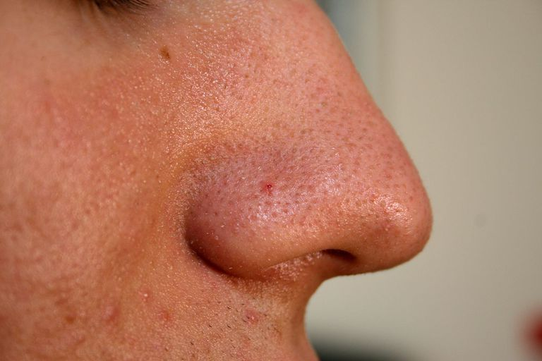 Nose from a 20 years old male human.