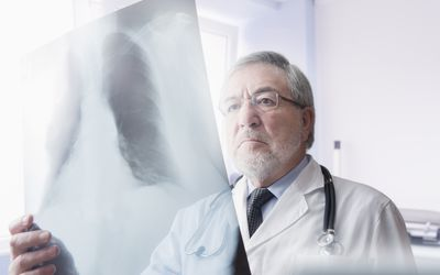 Doctor reading chest xrays