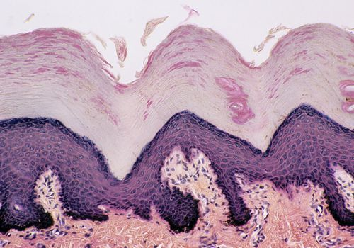 Desquamation (sloughing of cells) from the Epidermis, Thick Skin, Human, 100X at 35mm. Shows: epidermal layers