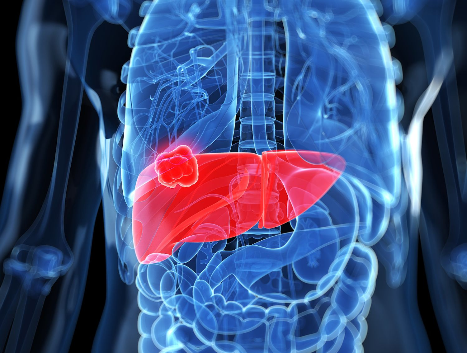How Lung Cancer Spreads to the Liver