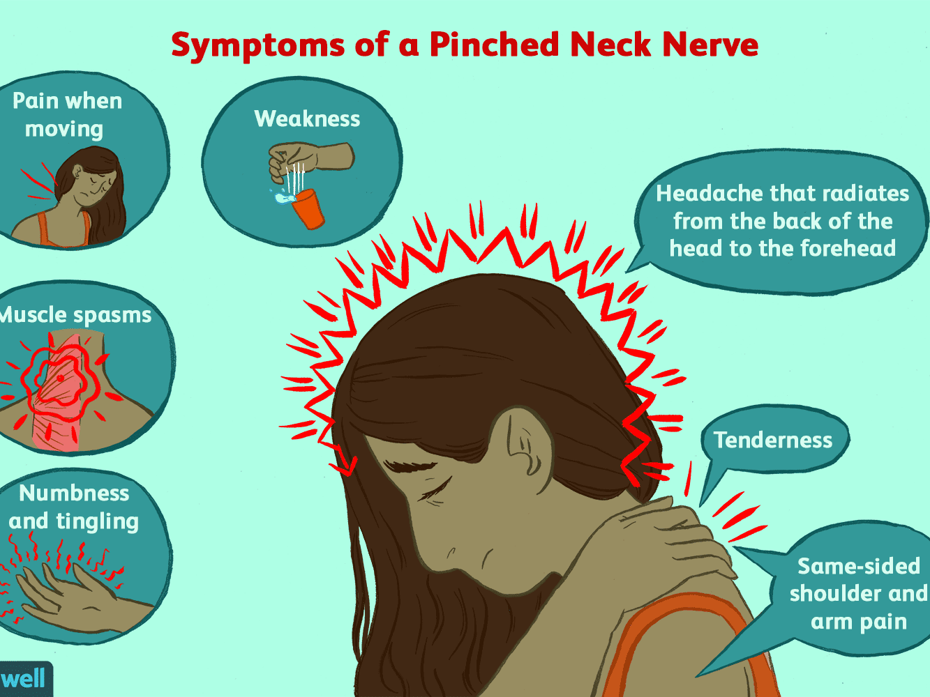 3 Easy Facts About Pinched Nerve Mid Back Left Side Described