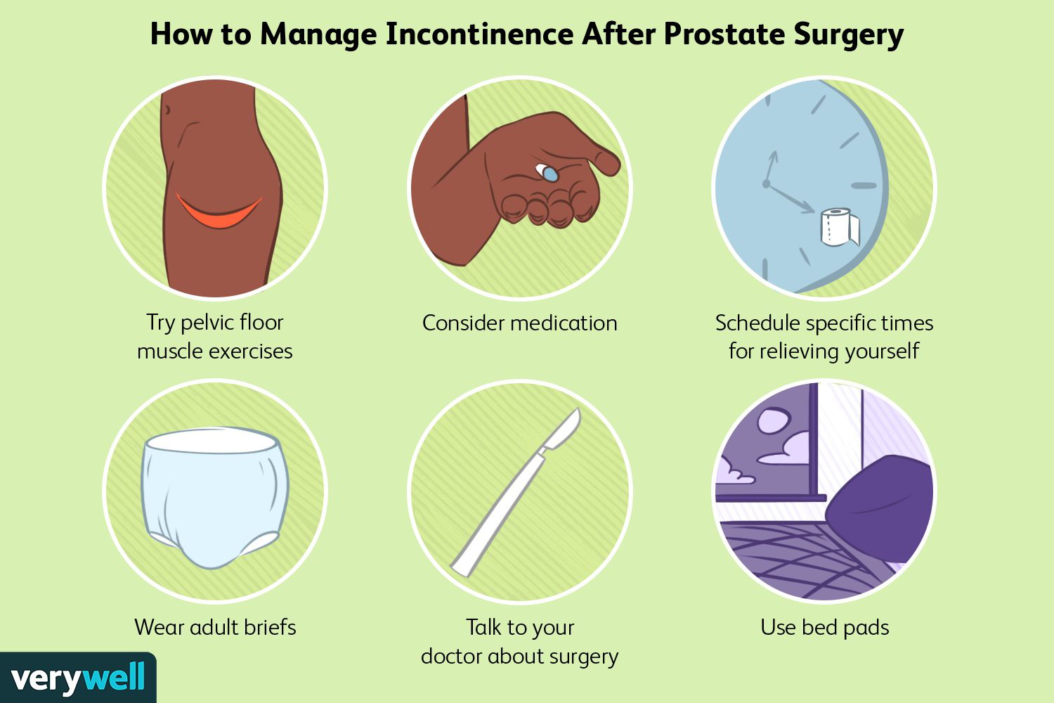 How to Manage Incontinence After Prostate Surgery