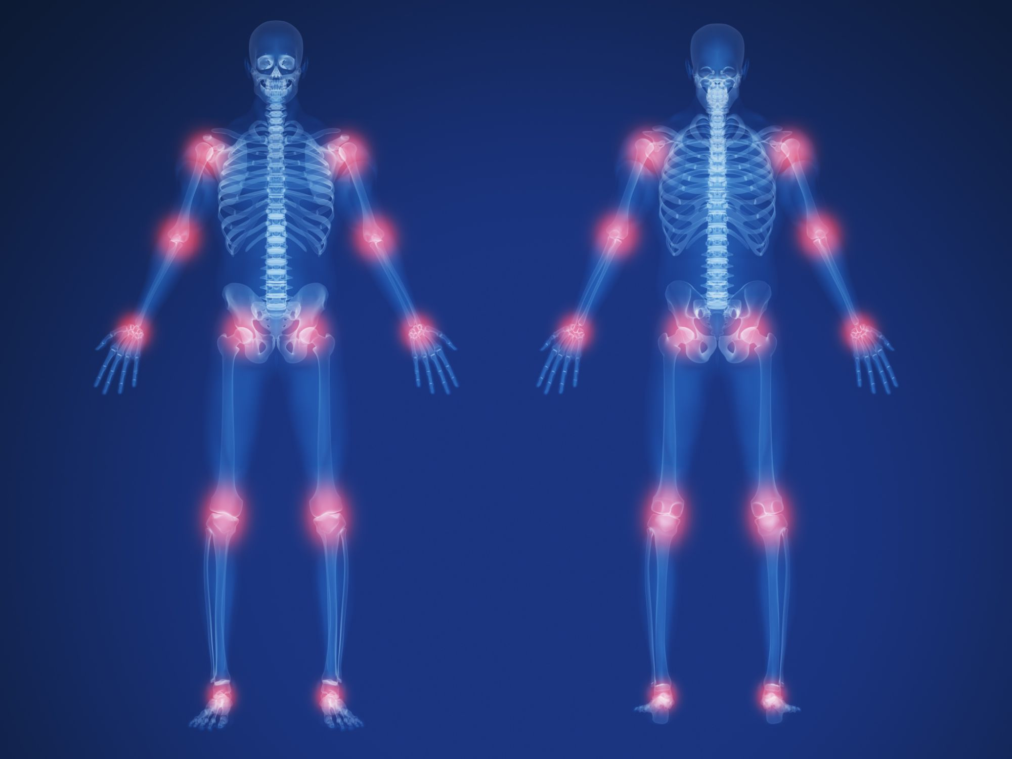 Migratory joint pain