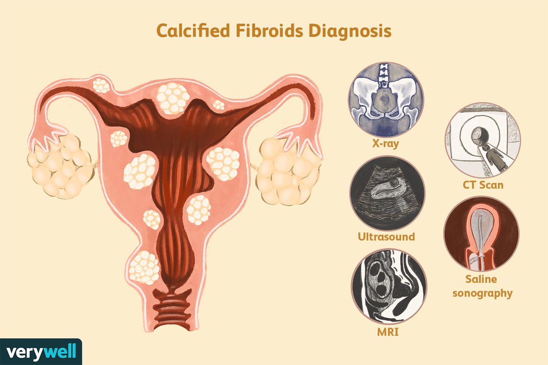 Calcified Fibroids Diagnosis