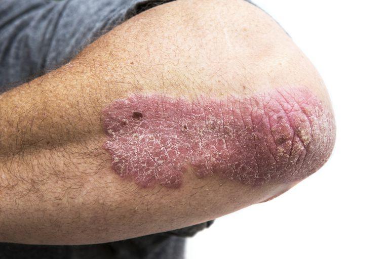 psoriasis on man's elbow