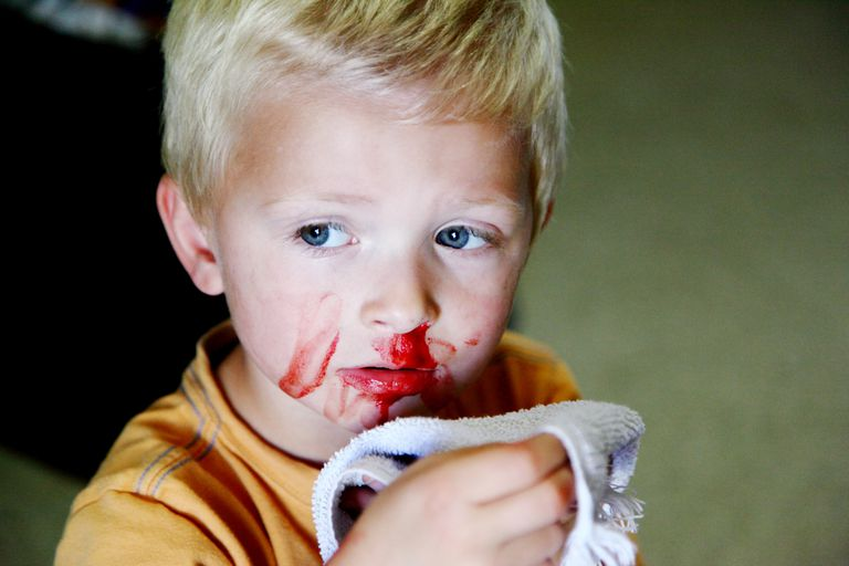 Close-Up Of Boy With Bleeding Nose
