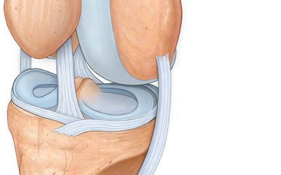 Bone Spur Causes, Symptoms, and Treatment