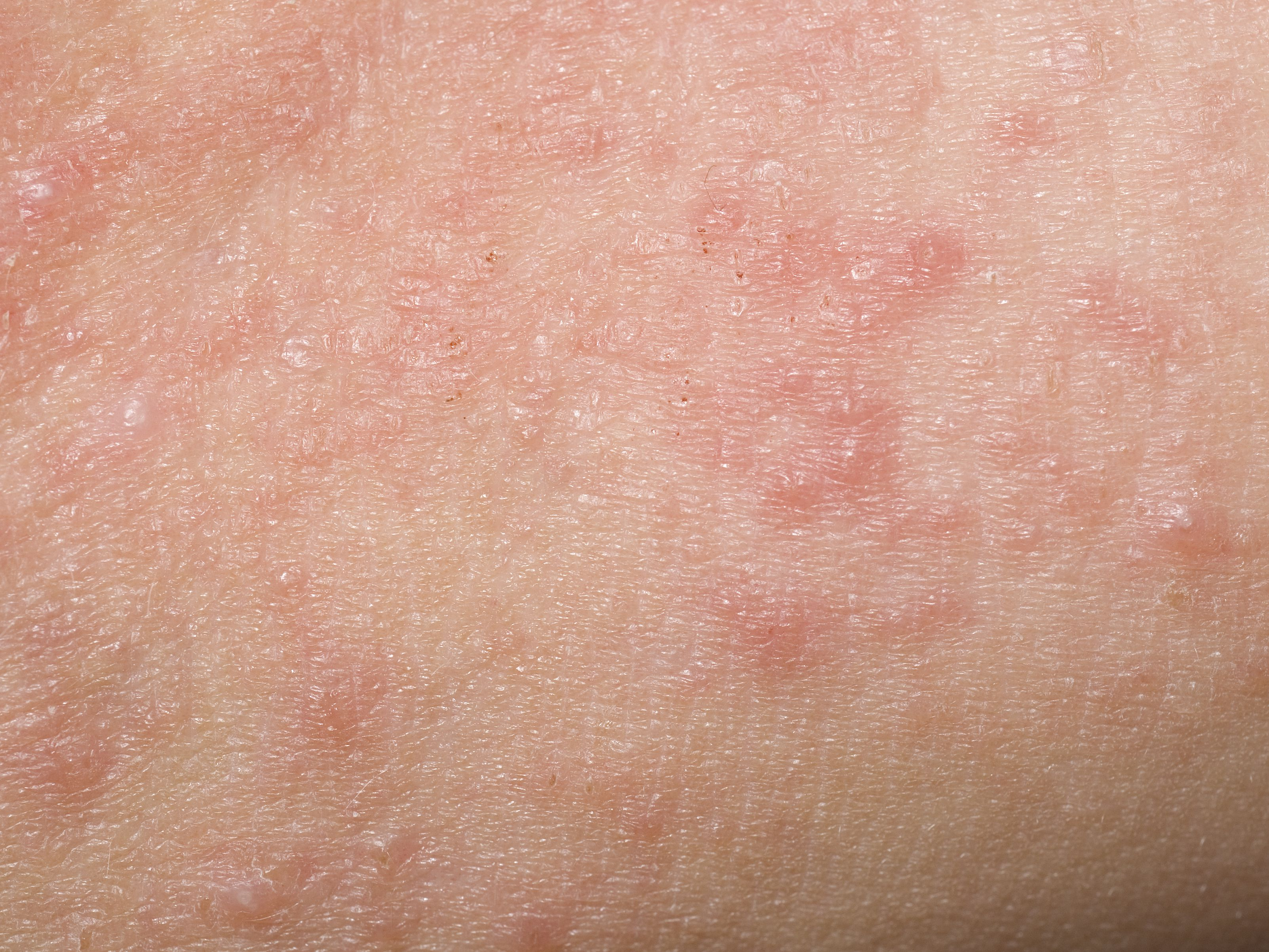 Contact Dermatitis: Symptoms, Causes, Diagnosis, Treatment