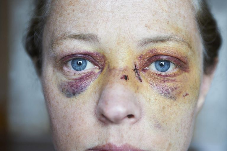 Bruising Around Both Eyes Can Be A Sign Of Skull Fracture Paul Viant The Image Bank Getty Images