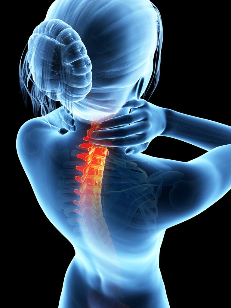 Can Rheumatoid Arthritis Affect The Spine