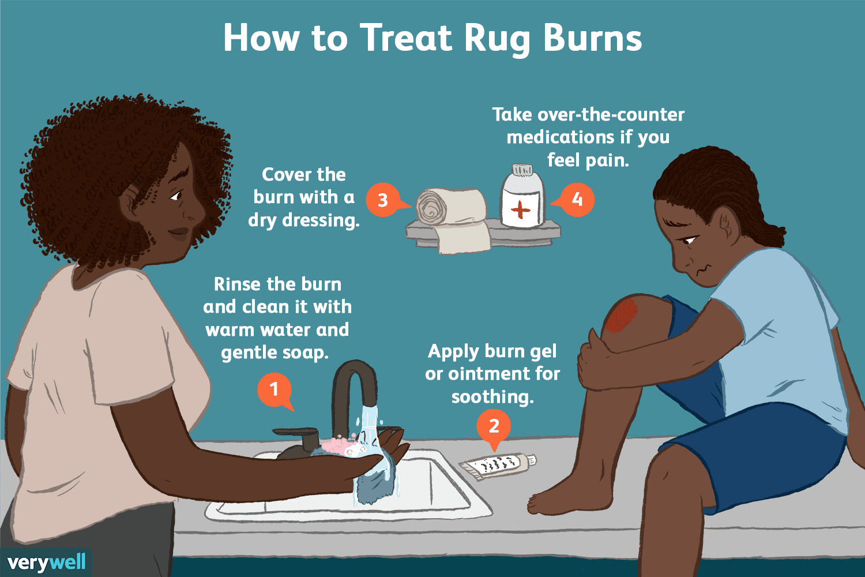 how to treat rug burn