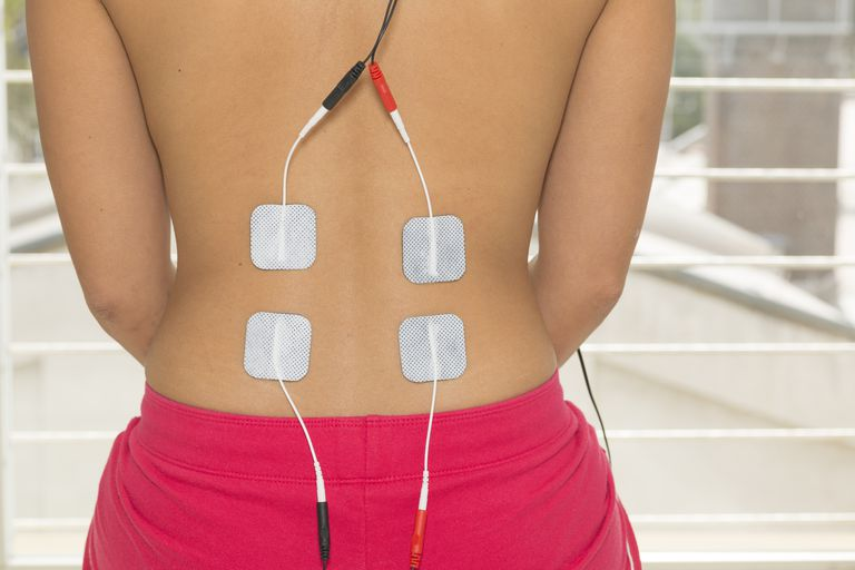 Four electrodes from a TENS unit are on a woman's bare back.