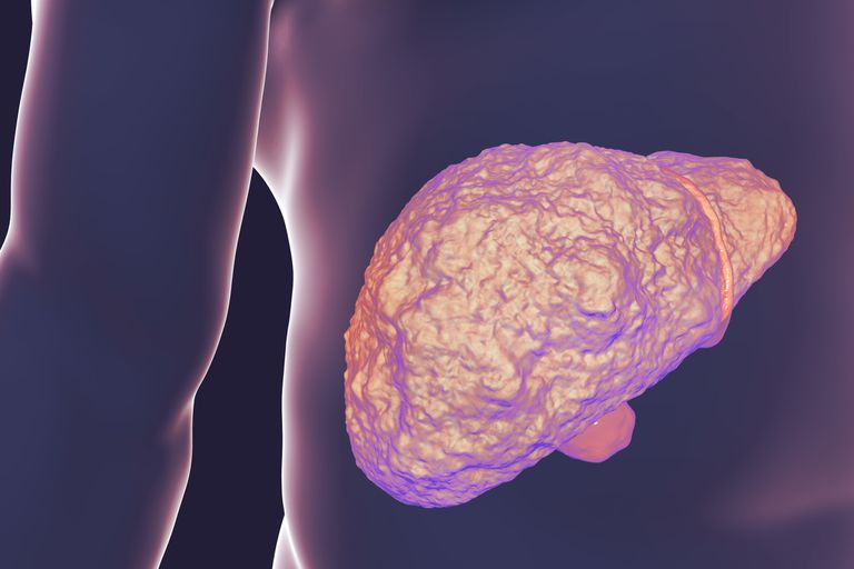 Liver with cirrhosis, computer illustration. Cirrhosis is a consequence of chronic liver disease characterized by fibrosis and scarring of tissue.