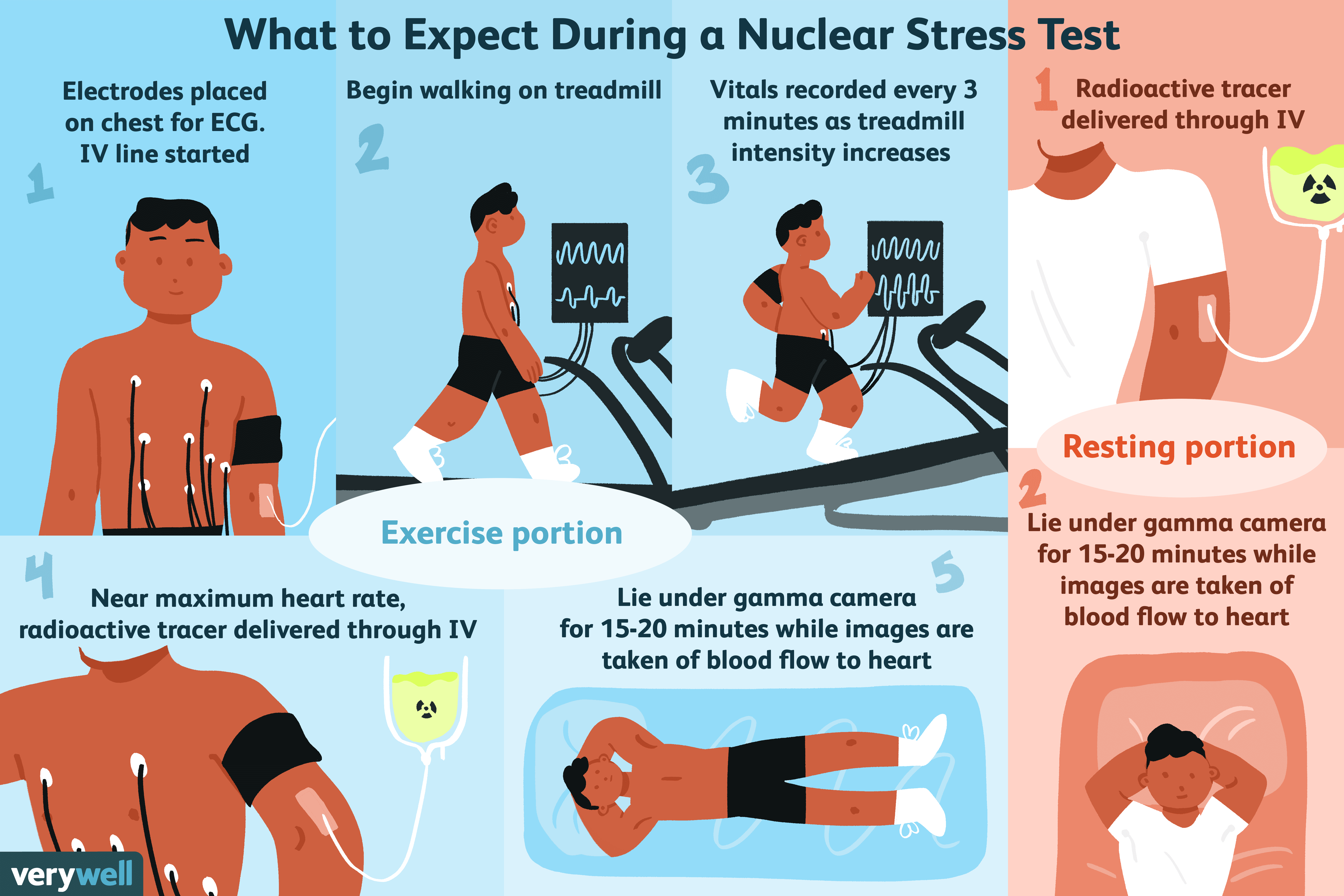 What To Expect During A Nuclear Stress Test