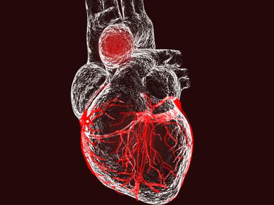 Aortic aneurysm, illustration
