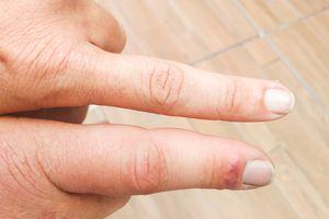 Swollen finger beside other finger