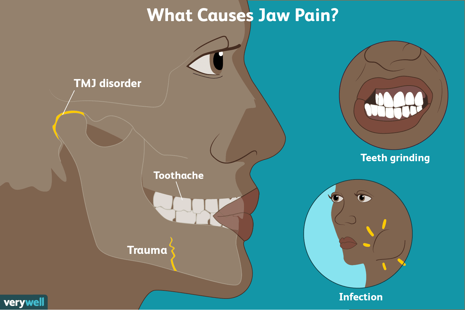 Jaw Pain Symptoms Causes Diagnosis And Treatment
