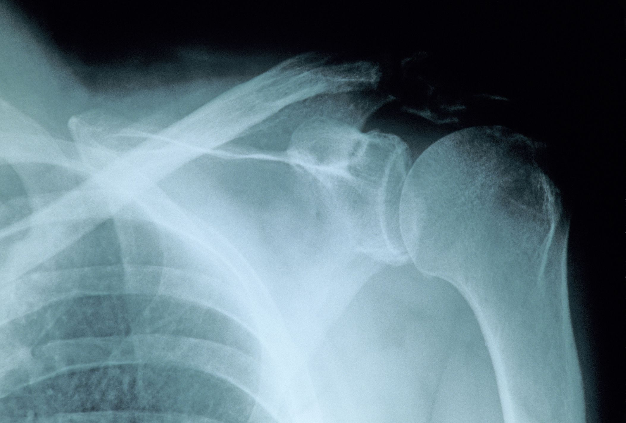 Proximal Humerus Bone Fractures Overview