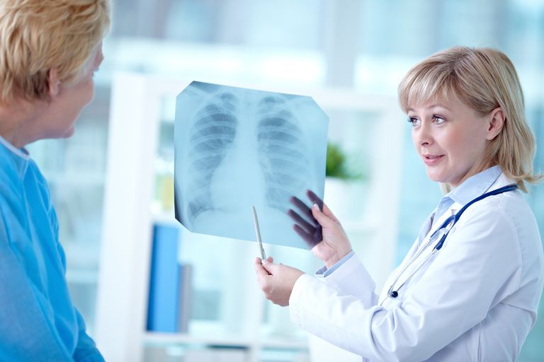 physician looking a an x-ray for evidence of bone metastases