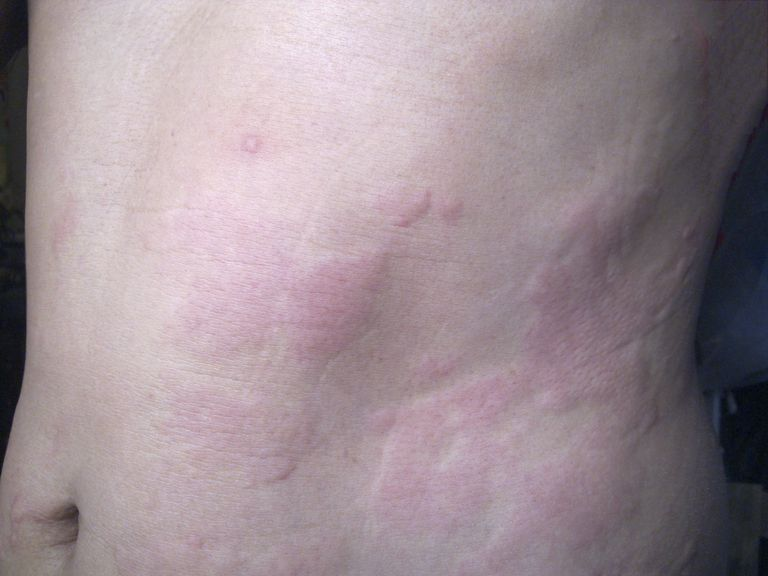 rash on skin due to an adverse reaction to a drug