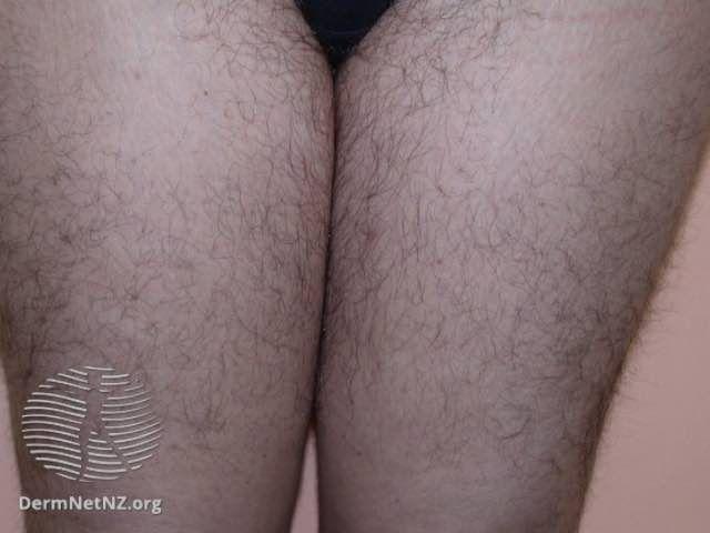 hirsutism on thighs