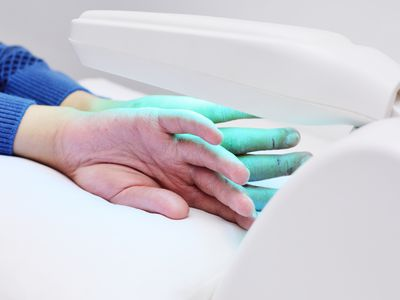 hands of a patient with psoriasis close-up under an ultraviolet lamp