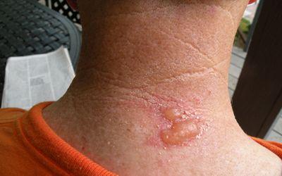 Signs and Symptoms of Bedbug Bites
