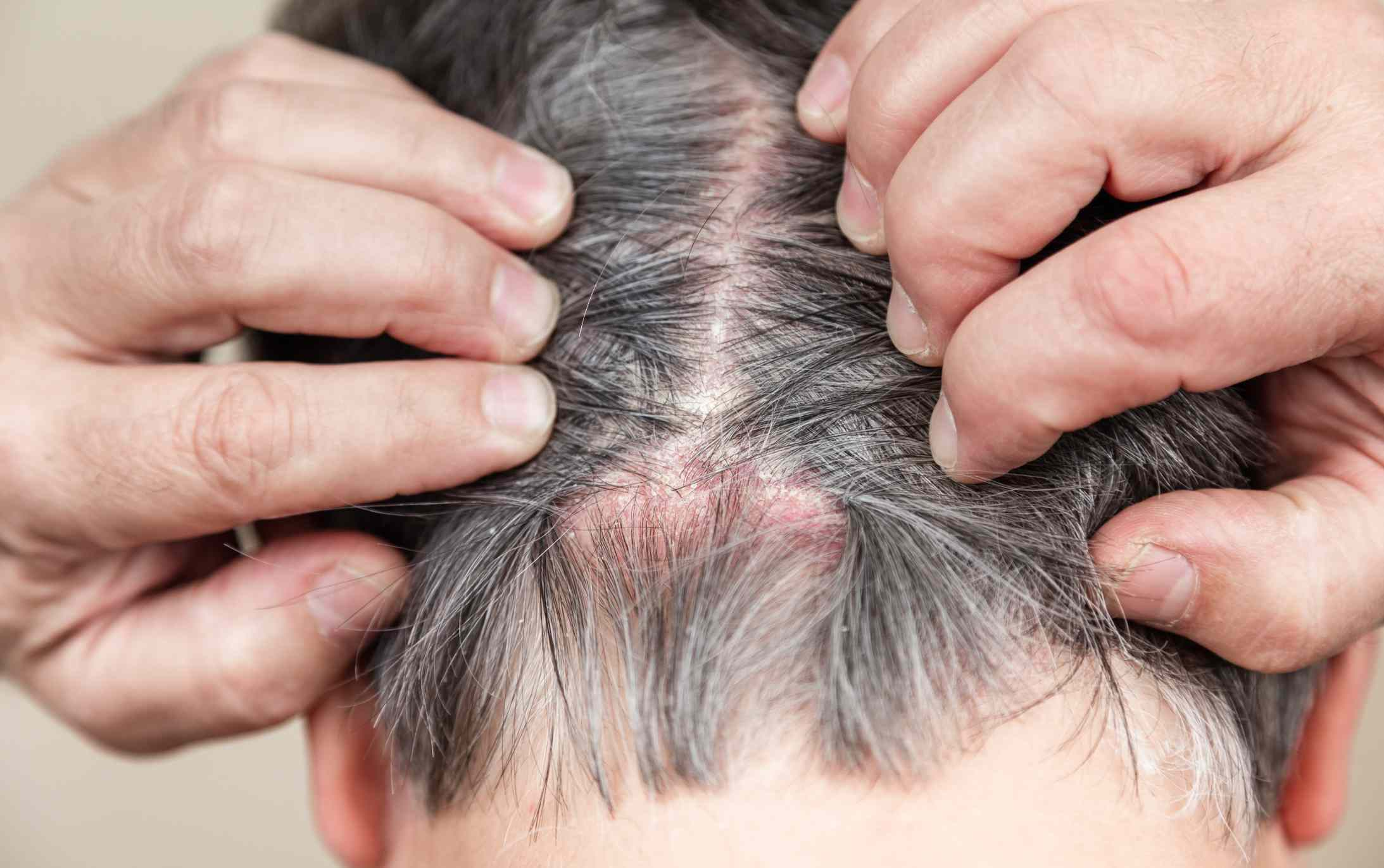 is psoriasis painful on the scalp
