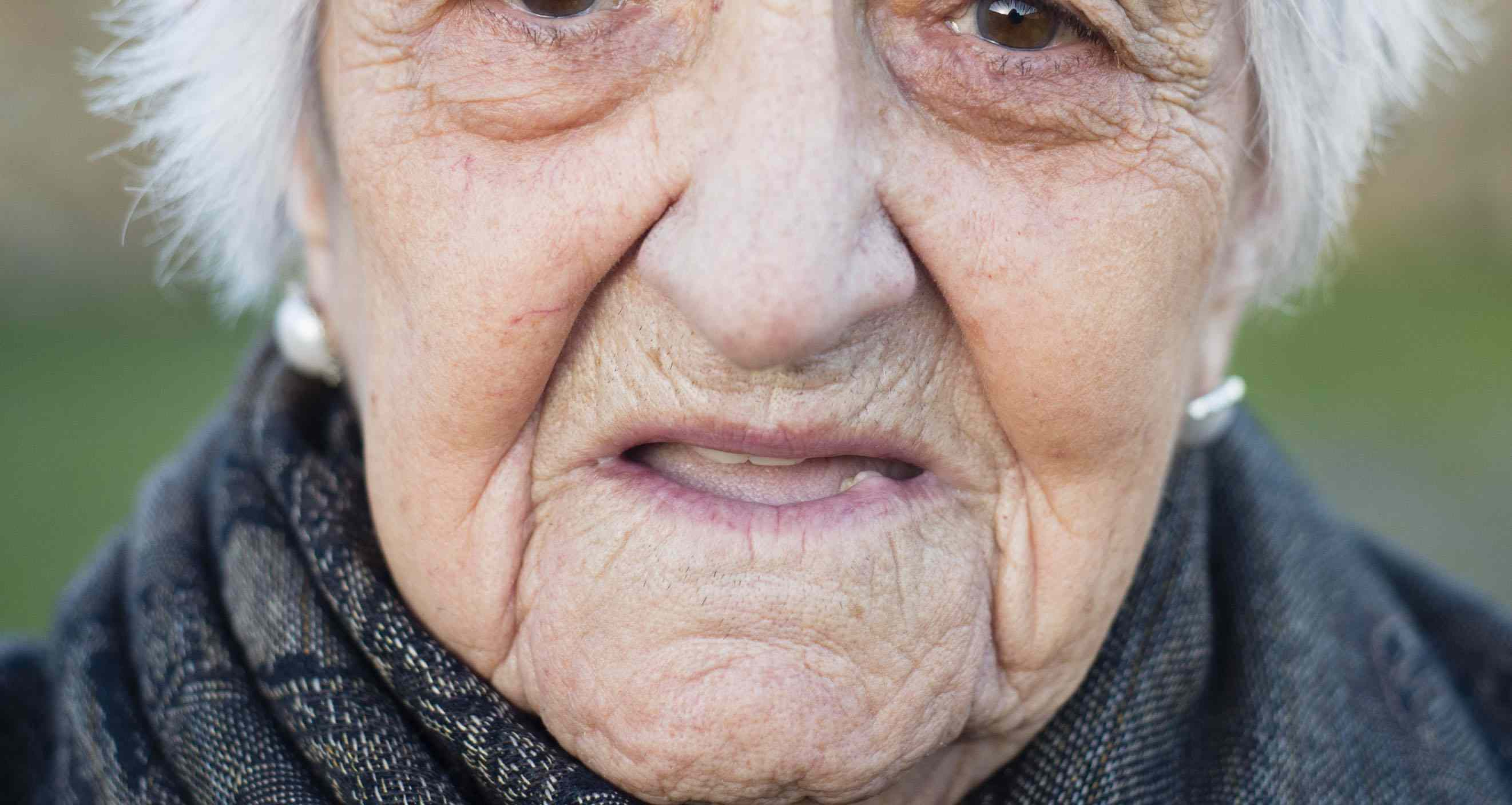 Guide to 7 Facial Wrinkles Smoothed by Botox