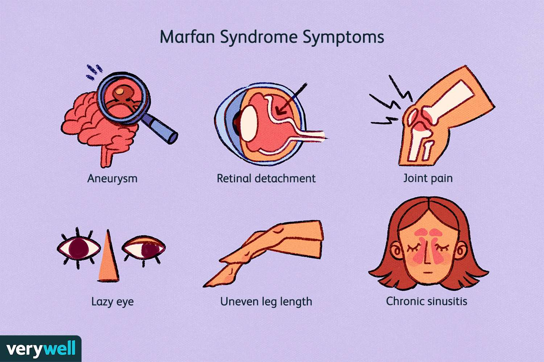Marfan Syndrome Symptoms
