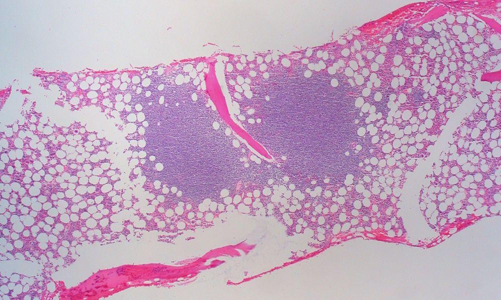 Microscopy of bone marrow showing infiltration of small lymphocytic lymphoma
