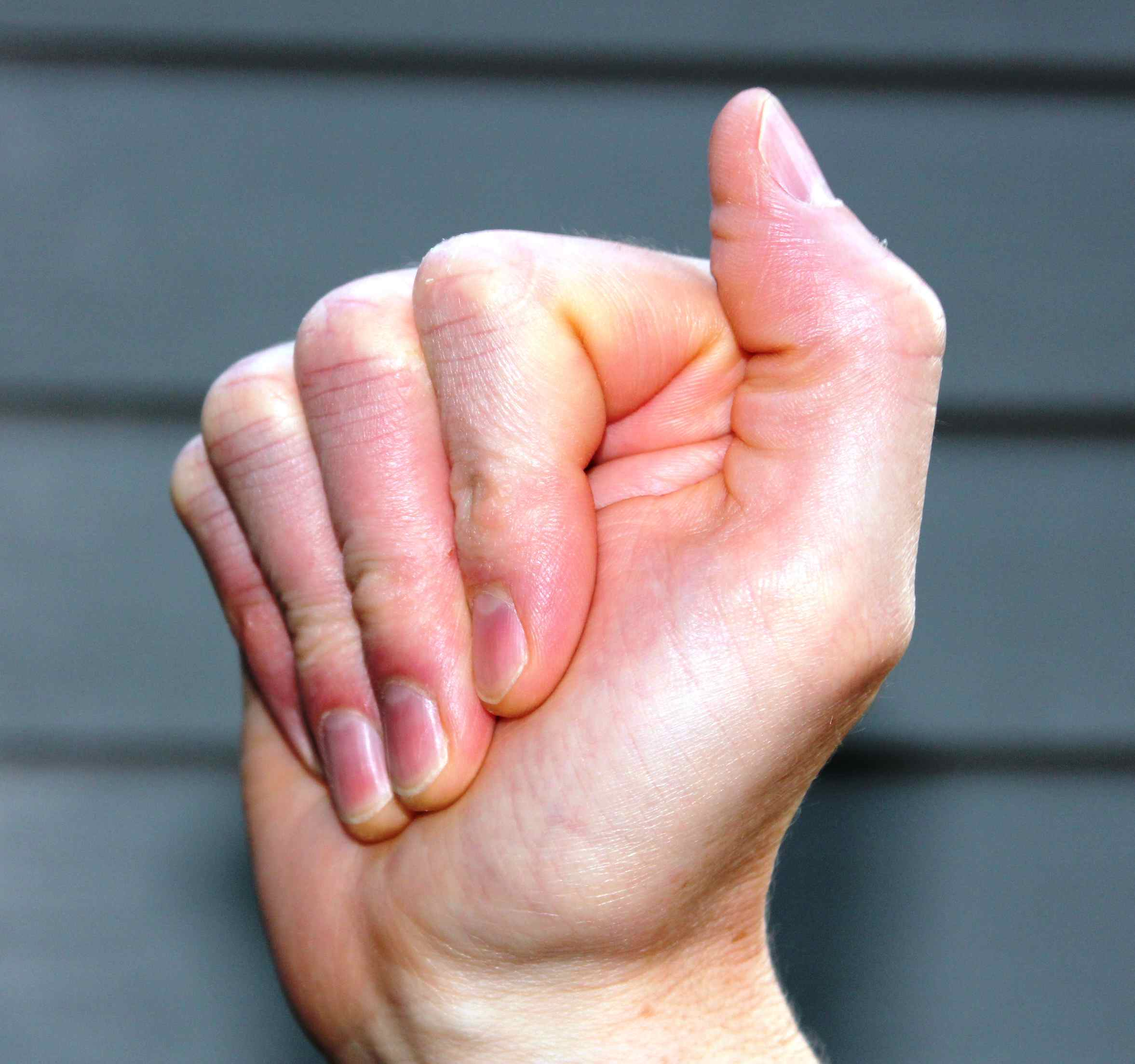 hand demonstrating fingers to palm position